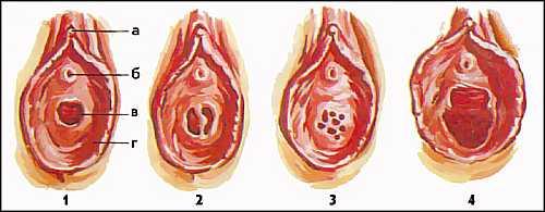 1-кольцевидная; 2-перегородчатая;3-решетчатая;4-после родов; а-клитор