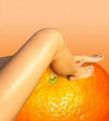 Атака на «апельсиновую кожу»: боремся с целлюлитом