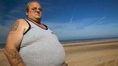 Намеренное похудение снижает риск возникновения рака