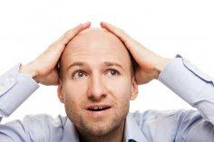Лысые мужчины больше подвержены риску инфаркта